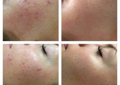 Skin resurfacing results