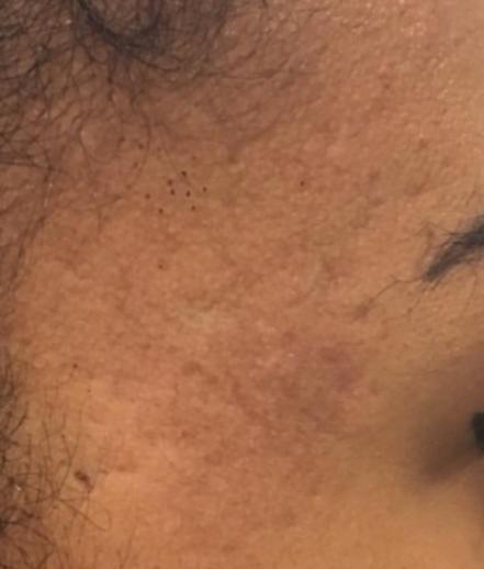 acne skin resurfacing - after Pyramid FaceLift