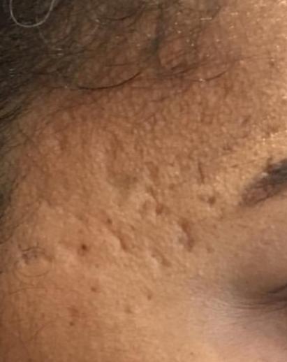 Acne skin resurfacing - before Pyramid FaceLift